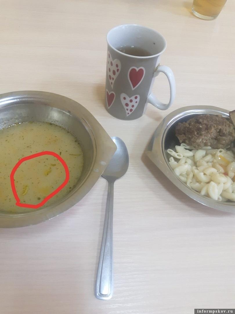 Пациентки родильного отделения Островской межрайонной больницы нашли в супе червей. Фото предоставлено ПАИ пациенткой.